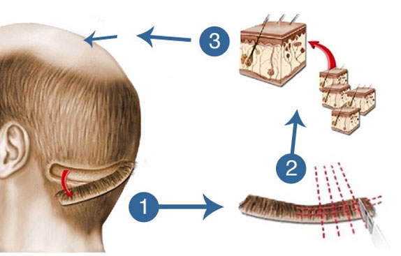 Transplant prevents excessive scarring and healing after the hair transplant procedure.